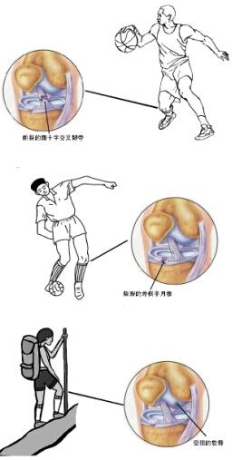 膝盖骨骼结构图